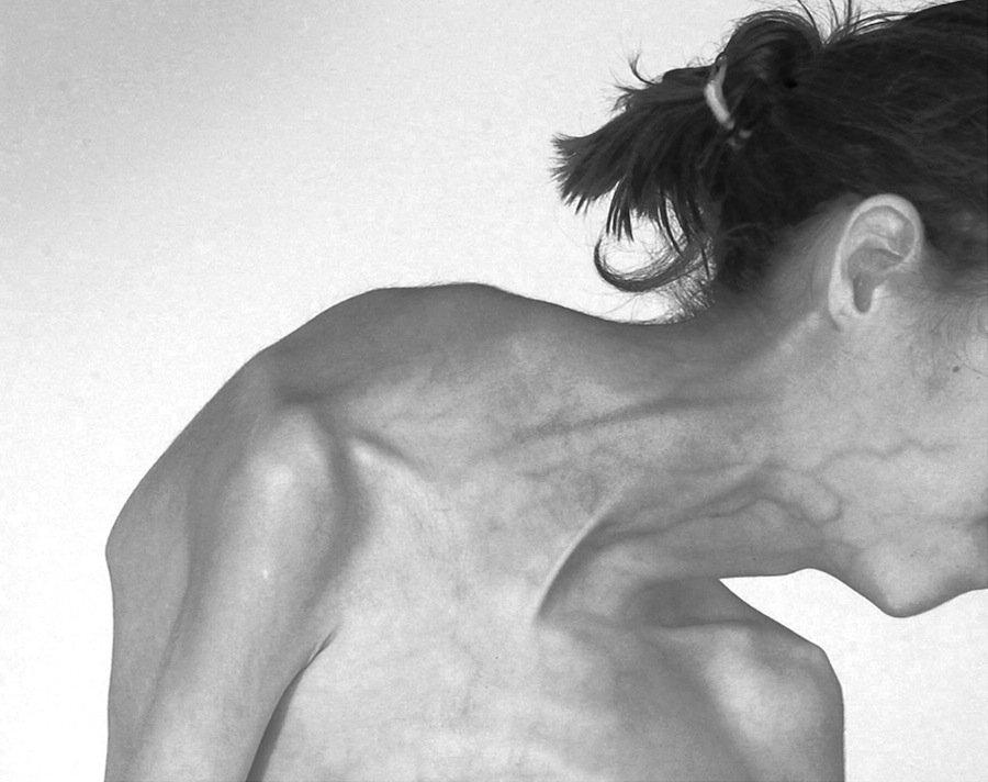 Синдром Протея фото