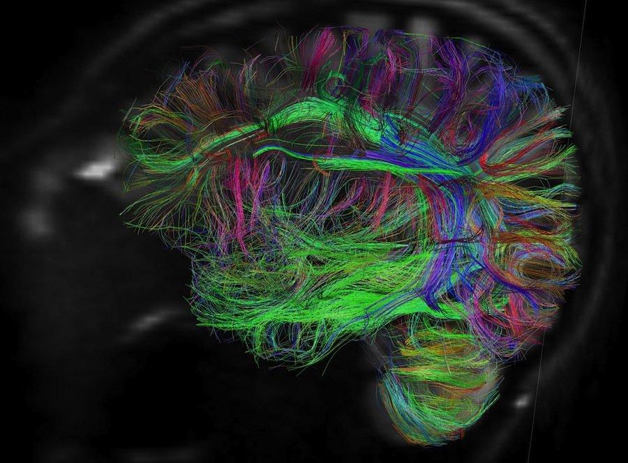 5 умопомрачительных способов, которыми ваш мозг пользуется, чтобы постоянно врать вам