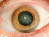 13 самых странных случаев, поразивших врачей