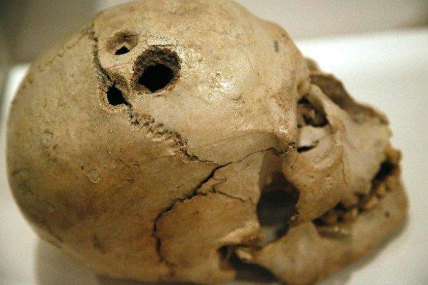 Картинки по запросу доисторические врачи