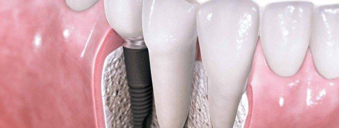 О лечении и протезировании зубов
