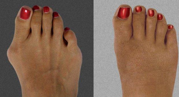 Ступня до и после хирургического вмешательства