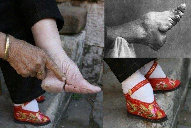Результат бинтования ног
