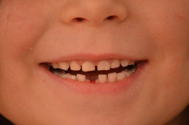 Зубы ребёнка
