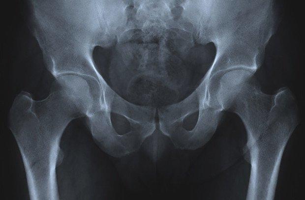 Тазовая кость на рентгеновском снимке