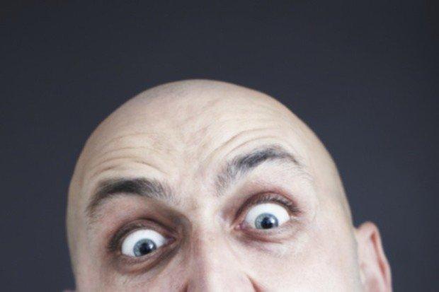 Лысый мужчина с выпученными в удивлении глазами