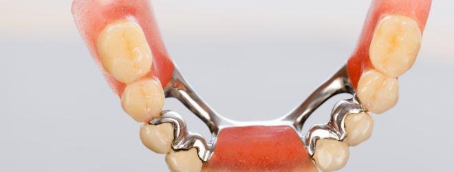 Безметалловая керамика – белое золото в стоматологии