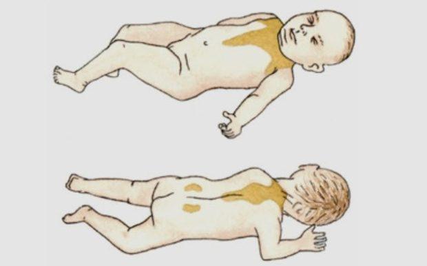 Бурый жир в организме ребенка
