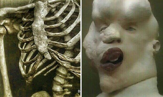 Скелет и голова