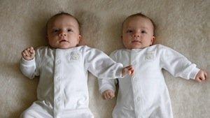 10 самых удивительных близнецов нашего времени