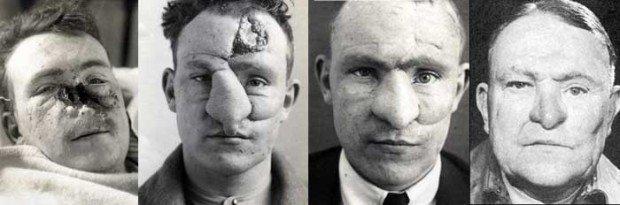 7 интересных историй о первых пластических операциях