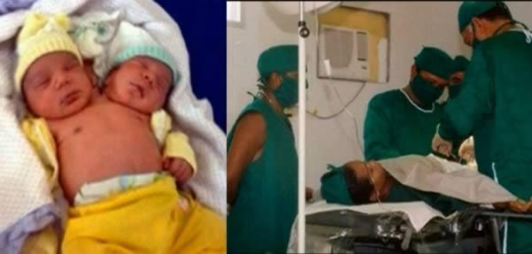9 человек, родившихся с лишними частями тела