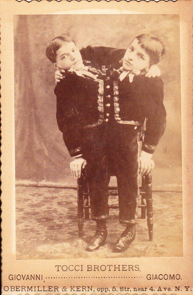 10 любопытных историй о знаменитых сиамских близнецах