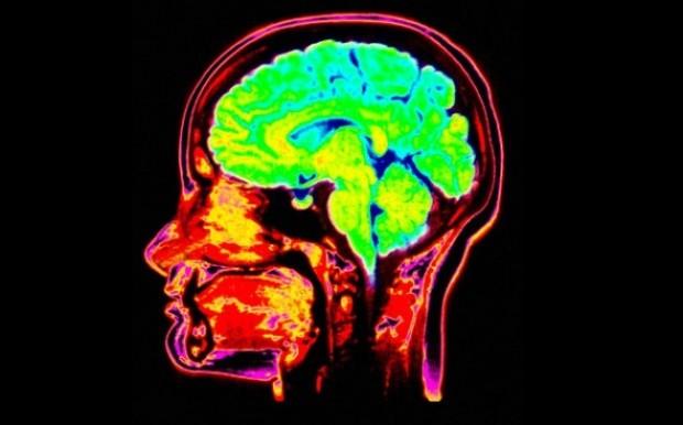9 странных историй о человеческом мозге