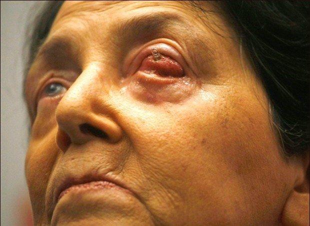 Женщина с больным глазом
