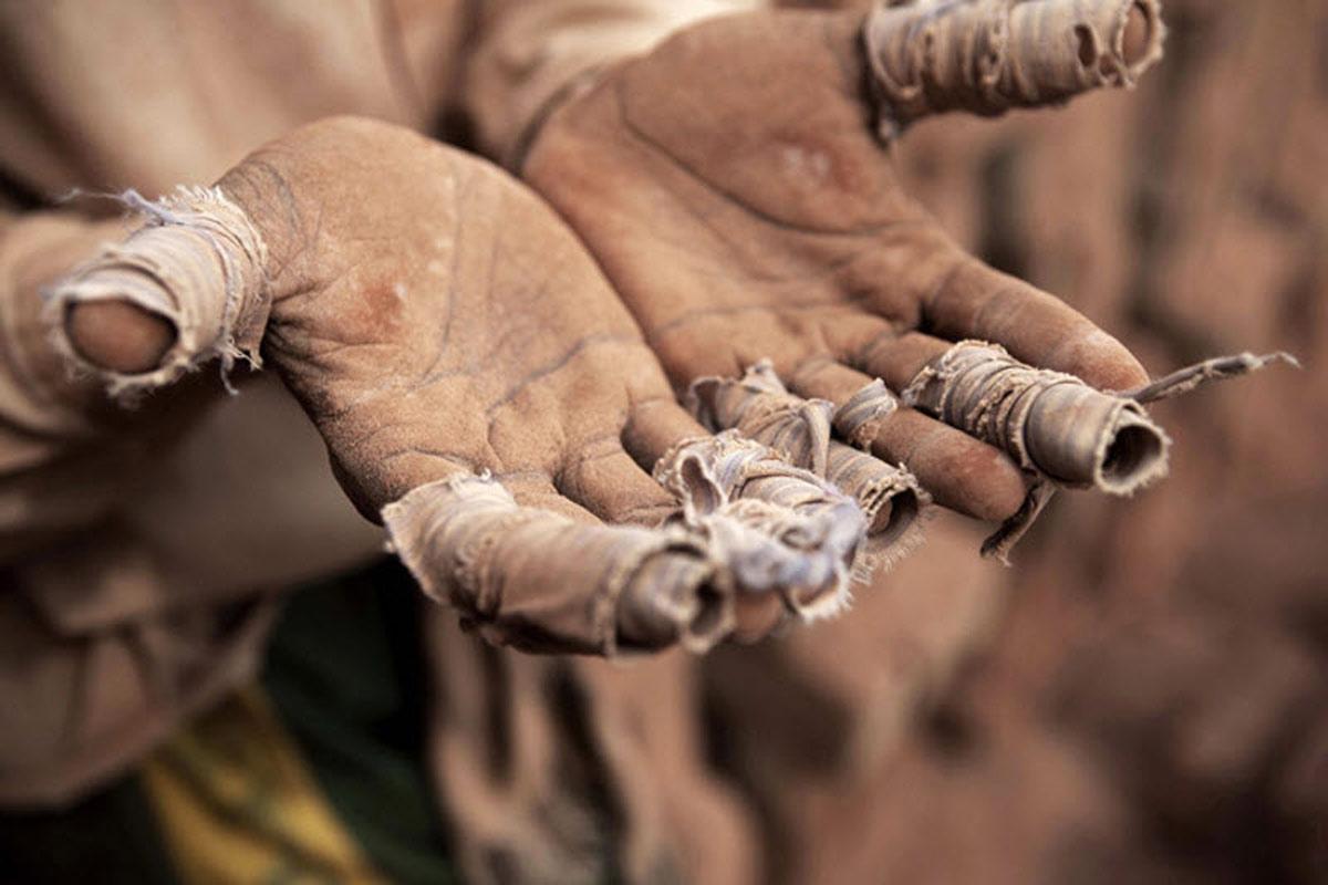 Руки раба с перевязанными пальцами