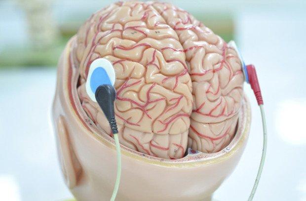 Стимуляция головного мозга электродами