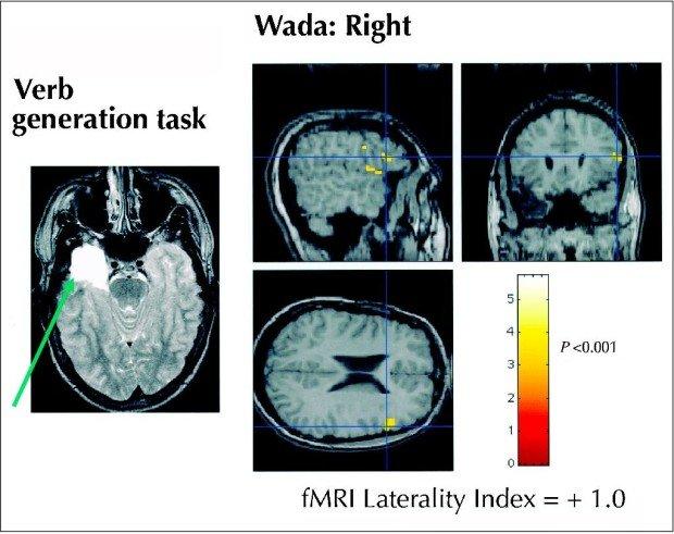 Активность зон головного мозга