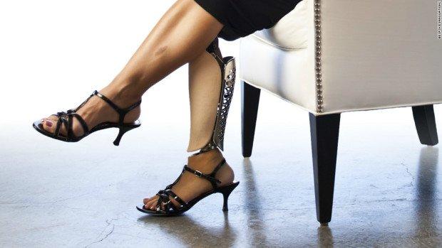 Протезированная нога у женщины