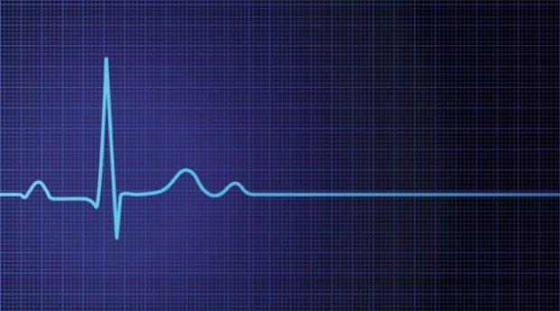 Линия сердцебиения