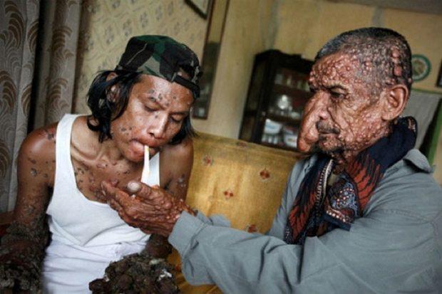 самые странные болезни в мире