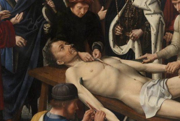 Изображение человека, с которого снимают кожу