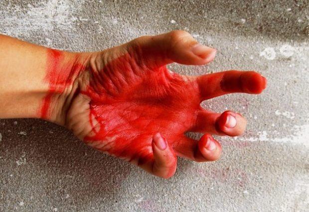 Рука с красной ладонью